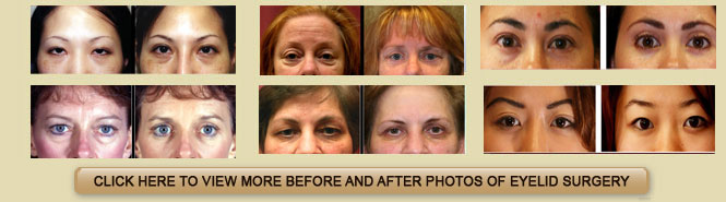Eyelid Before and After Photo Gallery