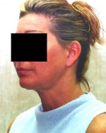 Liposuction of the Neck