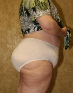 Liposuction of the Back & Buttocks