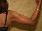 Arm Lift/Brachioplasty