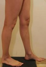Calf Augmentation