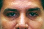 Eyelid Surgery/Blepharoplasty