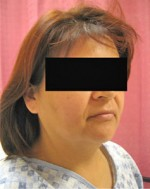 Liposuction of the Neck & Face