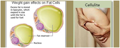 plastic surgery faq fat cells