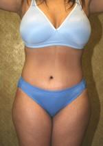 Tummy Tuck/Abdominoplasty