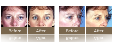 nonsurgical-photos-thum