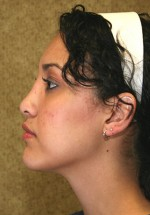 Nose Surgery/Rhinoplasty