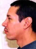 Nose Surgery/Rhinoplasty