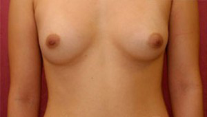 Breast Augmentation Revision