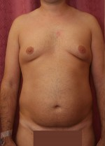 Abdominal Liposuction(Men)