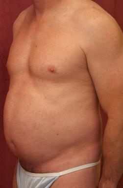 Abdominal Liposuction(Men)