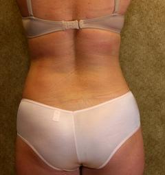 Abdominal Liposuction(Women)