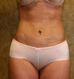 Abdominal Liposuction(Women)
